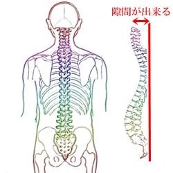 背骨の隙間