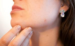 肌荒れの主要な原因は寝不足a